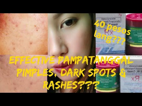 Ls Bl Cream Effective Pampatanggal Pimples Dark Spots Rashes