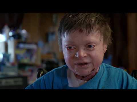 Epidermolysis Bullosa (EB) sufferer Jonathan Gionfriddo | The Boys With No Skin | Channel 5