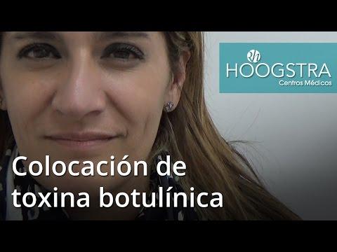Colocación de toxina botulínica (16089)