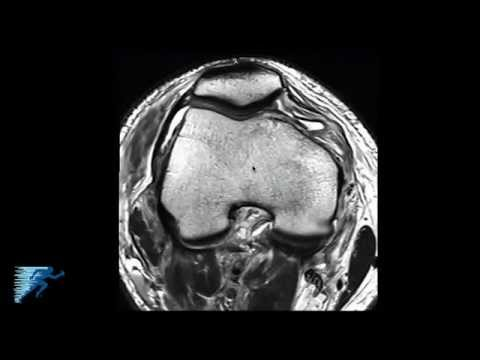 How to Read Knee MRI of PLC Injury | Posterolateral Corner Knee Injuries | Colorado thumbnail