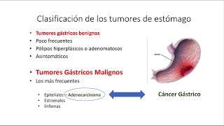 Cáncer Gástrico. Generalidades, Clínica y Diagnóstico