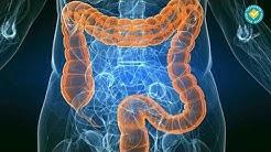 Спастичен колит или Синдром на дрaзнимото черво
