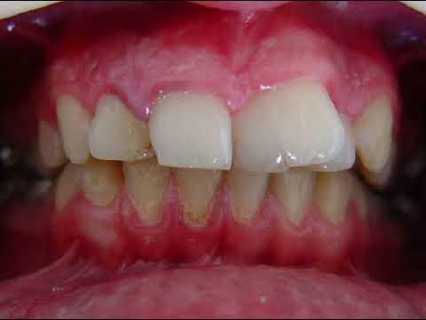 Interceptive Orthodontics 1