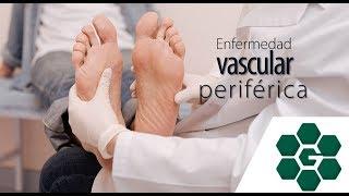 Malformación arterial con pierna vascular