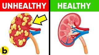13 Foods That Make Your Kidneys Healthy