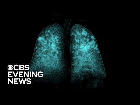 How Lung Scans Can Play An Important Role In Detecting Coronavirus