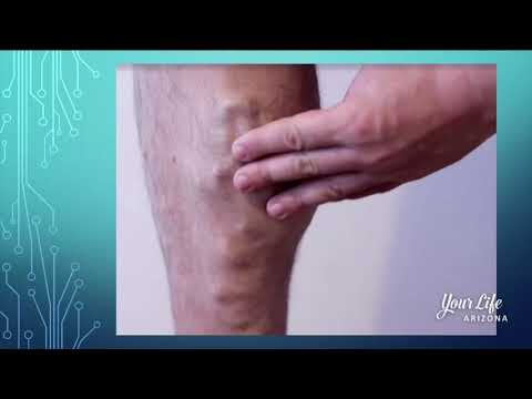 Your Life Arizona Vein Envy - Common Symptoms Of Vein Disease