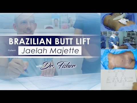 My Brazilian Butt Lift Experience at Eres Plastic Surgery - LIVE VIDEO FOOTAGE FROM THE OR