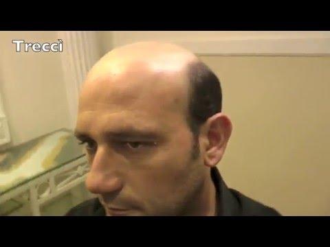 0823.1841236 prezzi e costi protesi capelli veri Napoli 9450e76388a8