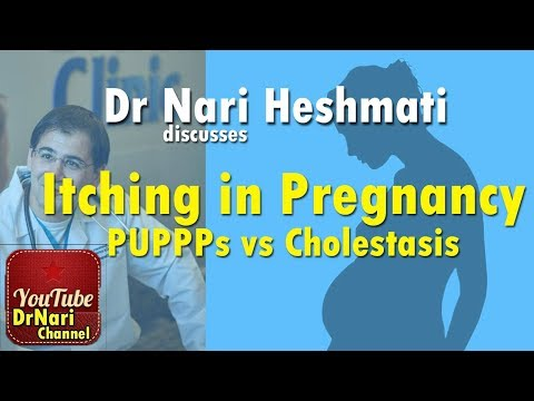 Itching In Pregnancy: PUPPPs Vs Cholestasis Of Pregnancy Discussed By Dr Nari Heshmati