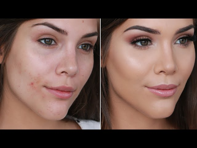 How To Conceal Pimples Without Makeup