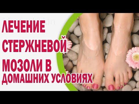 Мозоли на ногах: на пальце, пятке, подошве - сухие или