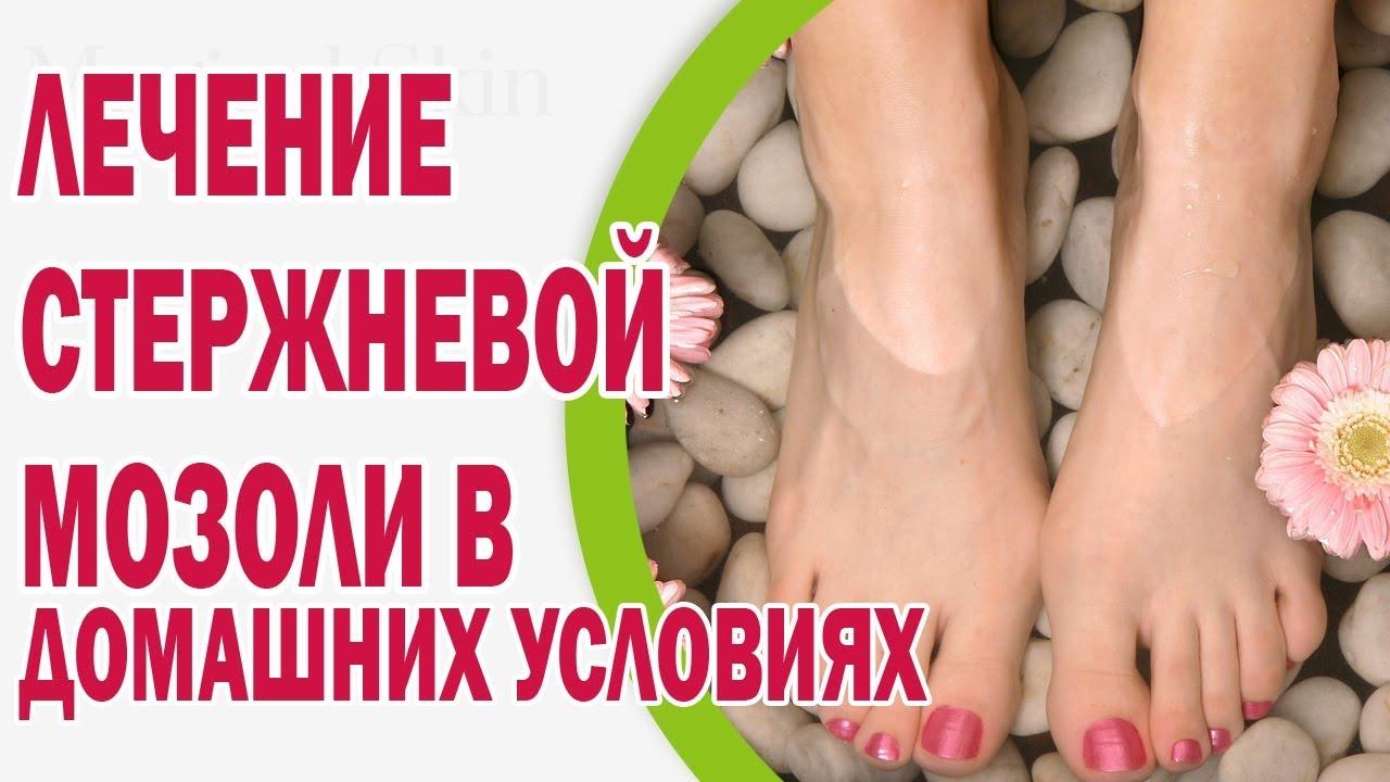 Сухая мозоль между пальцами ног лечение народными средствами