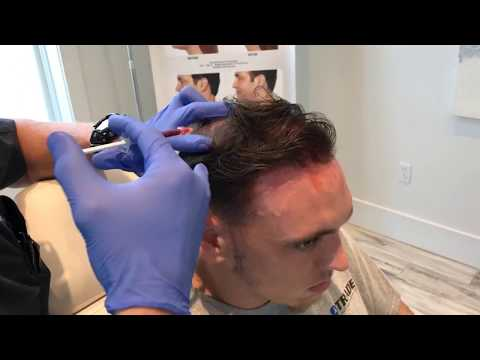 PRP Hair Restoration | Full Procedure | The Aesthetic Medicine and Anti Aging Clinics |