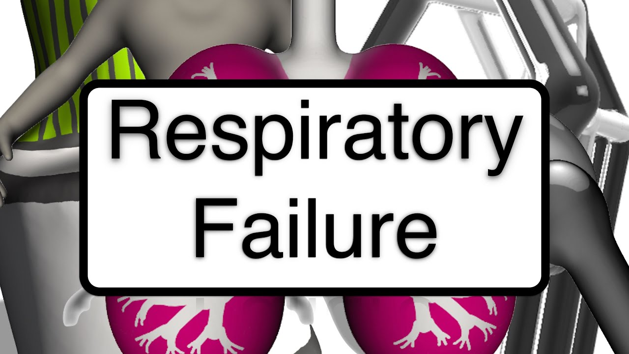 respiratory failure Watch the video lecture treatment of type 2 respiratory failure & boost your knowledge study for your classes, usmle, mcat or mbbs learn online with high-yield video lectures by world-class professors & earn perfect scores.