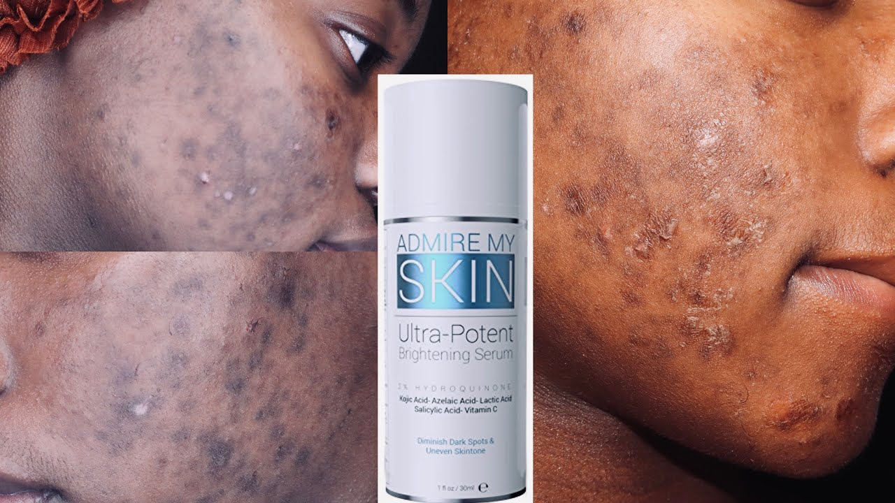 Download I TRIED ADMIRE MY SKIN ON MY HYPERPIGMENTATION | HONEST REVIEW