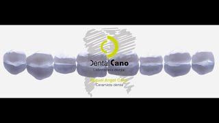 Realización de carillas de cerámica paso a paso. Miguel Angel Cano. www.dentalcano.com
