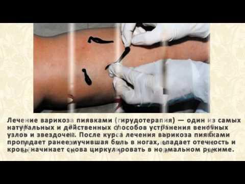Признаки, последствия, симптомы и способы лечения