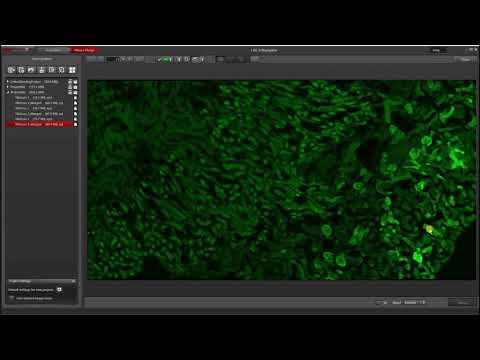 Leica Las X Thunder Imager Model Organism Youtube