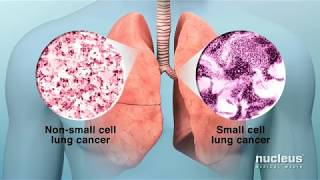 Please visit our sponsor health journey support to watch more animations on high blood pressure @ http://www.healthjourneysupport.com/lungcancerlung cancer i...