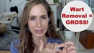 WART REMOVAL: What to Expect! Warning: GROSS!