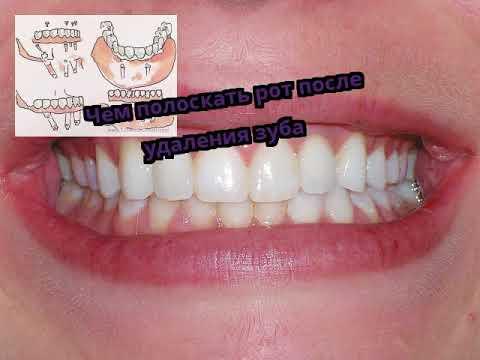 Как правильно полоскать рот после удаления зуба