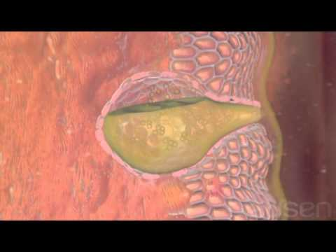 What is Esophageal cancer?, Treatment, Medical animation