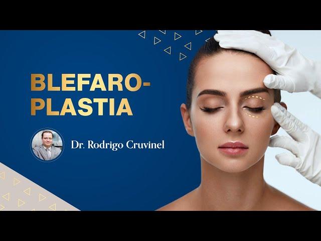 BLEFAROPLASTIA | Dr. Rodrigo Cruvinel