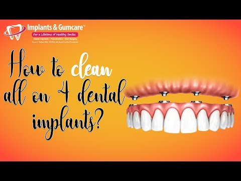 How to clean all on 4 dental implants? - by Dr V, Implants & Gumcare, Dallas, Texas