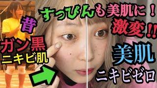 【美肌】肌は一生物!日焼けし過ぎた真っ黒な肌から美白になる方法‼︎‼︎‼︎ thumbnail