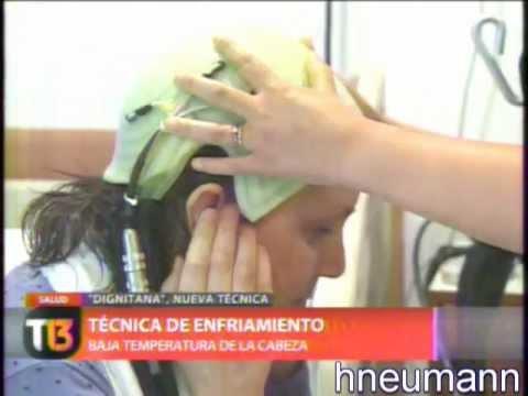 evitar caida del pelo en quimioterapia, cancer