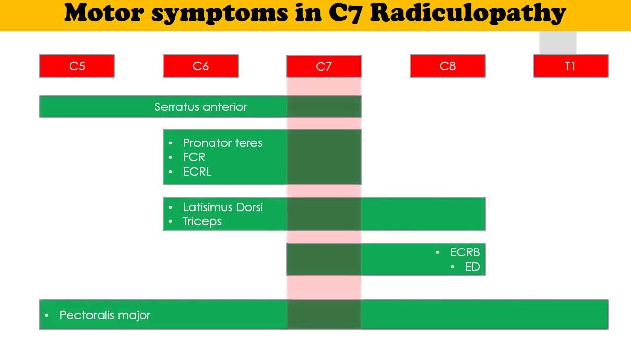 C7 Radiculopathy Youtube
