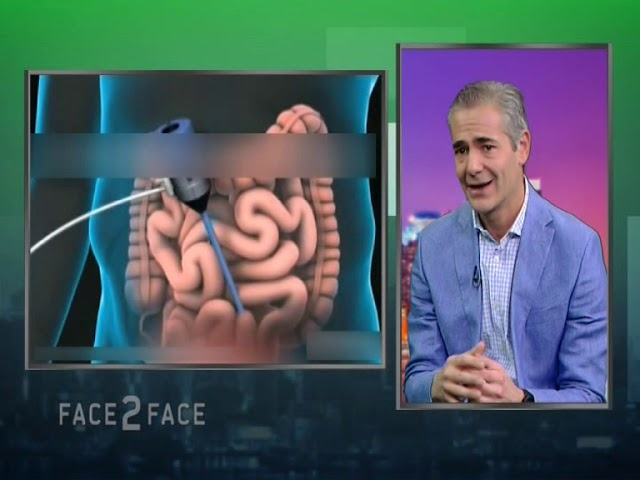 FACE TO FACE TV SHOW 481