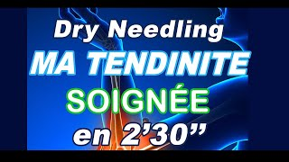 Dry Needling : ma tendinite au coude soignée en 2'30''
