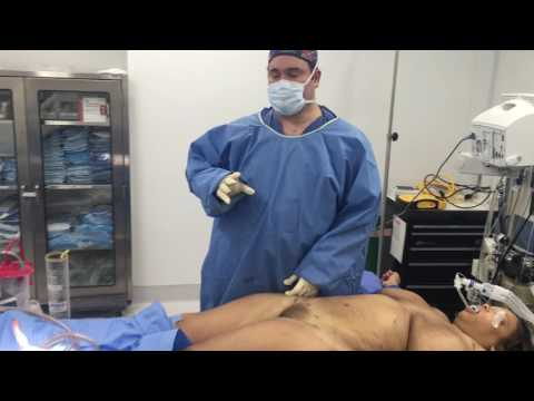 Liposuction of the Sides and Flanks and Fat Transfer to the Hips with Dr. Kenneth Benjamin Hughes