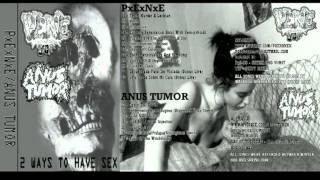 Anus Tumor - Split Tape with PENE 1/2
