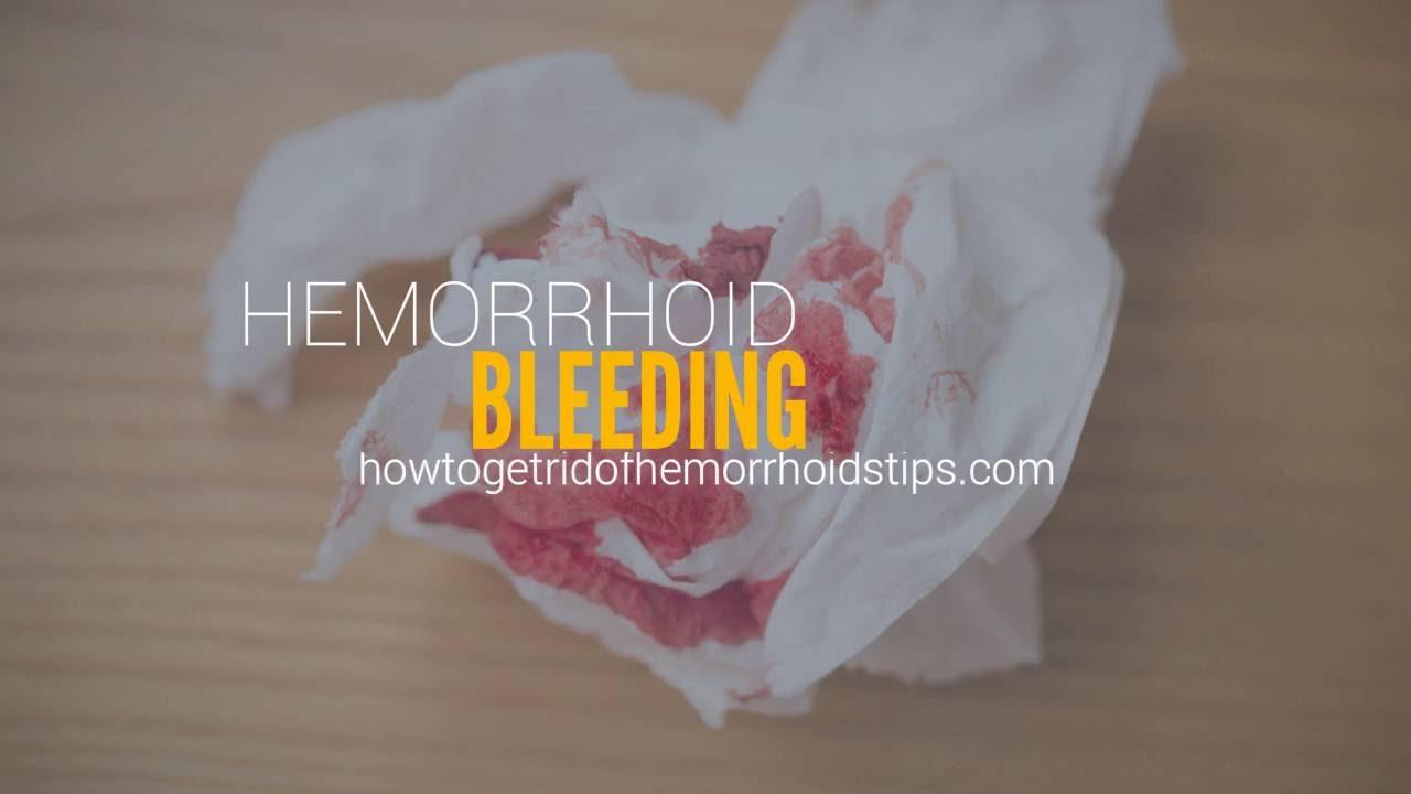Hemorrhoid bleeding - YouTube