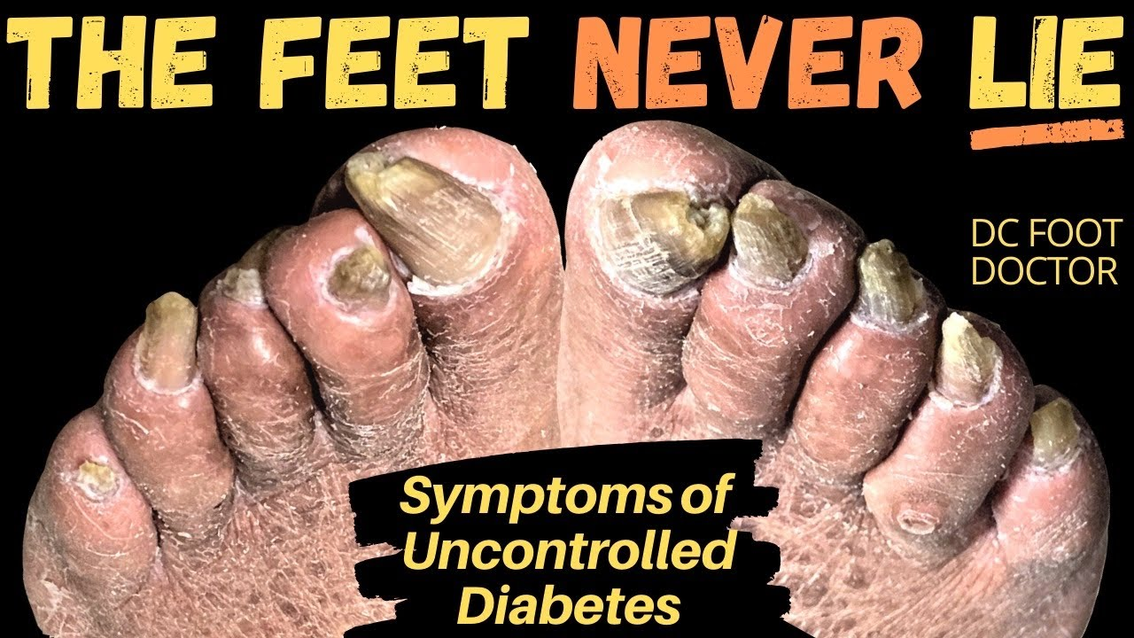 The Feet Never Lie: Signs and Symptoms of Uncontrolled Diabetes, Trimming Fungal Toenails