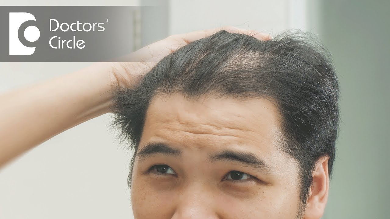 How To Treat Hair Thinning In Front Part Of The Scalp Dr Nischal