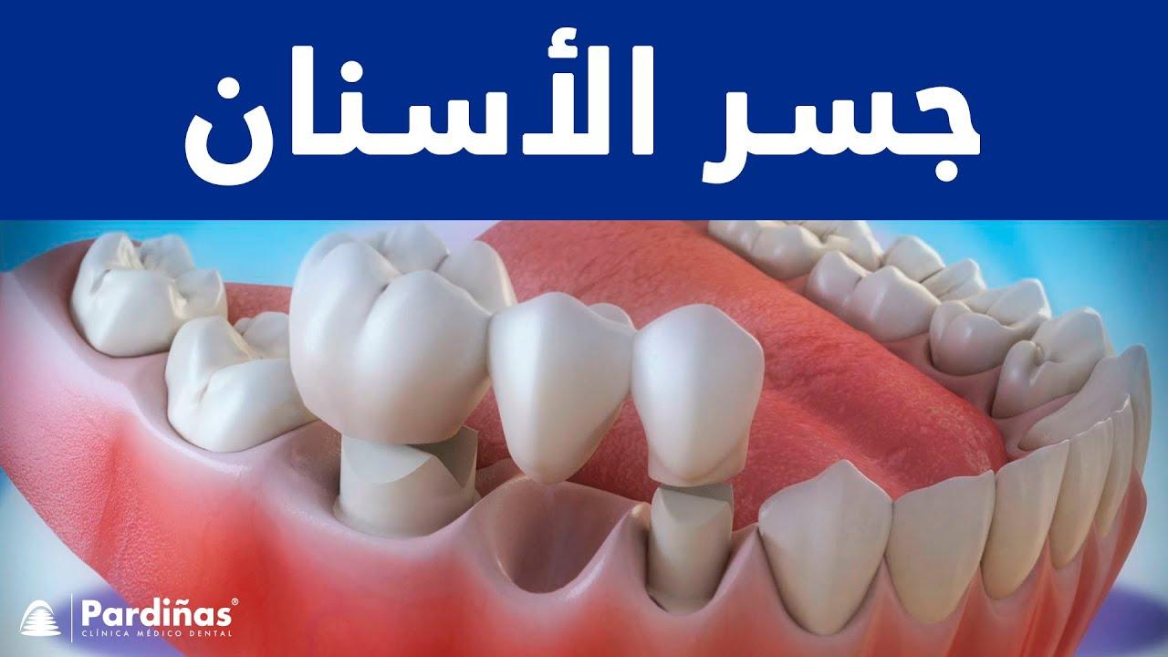 جسر الأسنان C Youtube