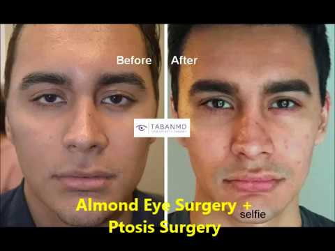 Almond Eye and Ptosis Surgery - YouTube - ptosis surgery