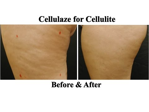 Get rid of cellulite NYC | Cellulaze Q & A with Dr. Bruce Katz