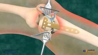 Hohe Tibiale Osteotomie (HTO) für Bogen-Bein Korrektur