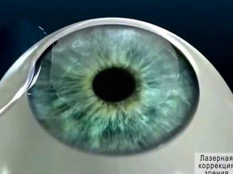Миопия 2 степени обоих глаз с астигматизмом