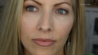 Restylane Filler Injections for Under Eye Puffiness - 4 mo Follow Up
