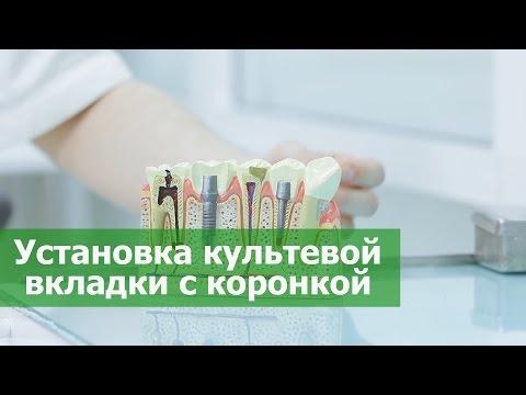 Зубная коронка. Установка культевой вкладки с коронкой в стоматологии ПрезиДЕНТ в Марьино