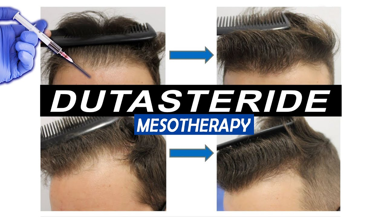 Mesotherapy with Dutasteride Injections, Pros and Cons and what Results to expect!