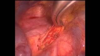 Linfadenectomía derecha por VATS