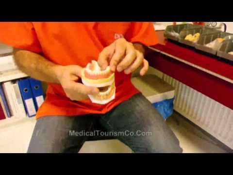Dental Bridge and Veneer placement - Cosmetic Dentistry Turkey