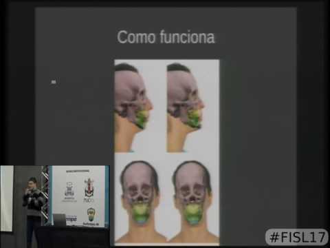 Planejamento de cirurgia Dento facial com o Blender 3D